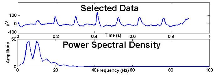 EEGgui: a program used to detect electroencephalogram anomalies