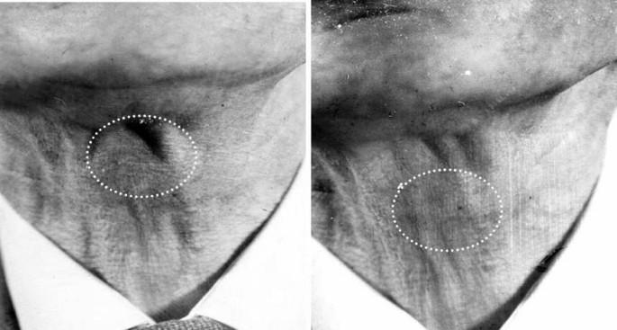 Rheumatoid nodule of the thyrohyoid membrane: a case report
