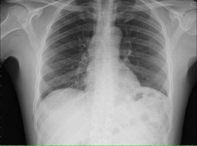Bordetella Bronchiseptica Pneumonia In A Man With Acquired Immunodeficiency Syndrome A Case Report Journal Of Medical Case Reports Full Text