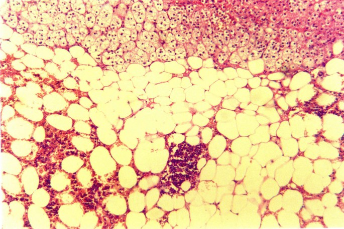 A giant adrenal lipoma presenting in a woman with chronic