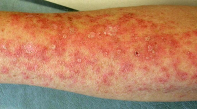 Cutaneous lupus erythematosus after treatment with paclitaxel and