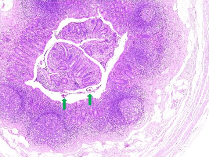 Enterobius vermicularis kezelés uptodate - nap alatt a bél körül
