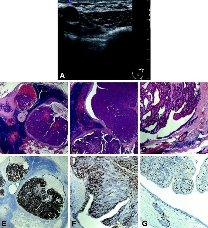 Anatomie patologica – Clinica Micomi