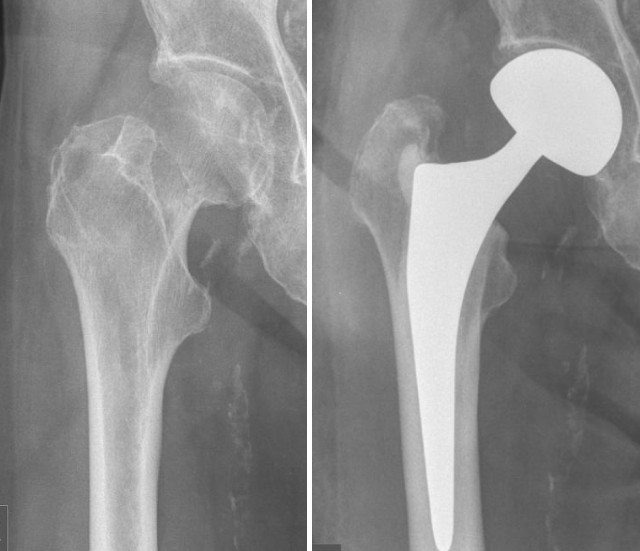 Treatment of femoral neck fractures in elderly patients over