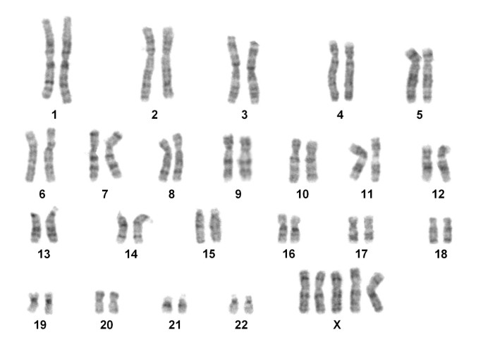 Detailed analysis of X chromosome inactivation in a 49,XXXXX