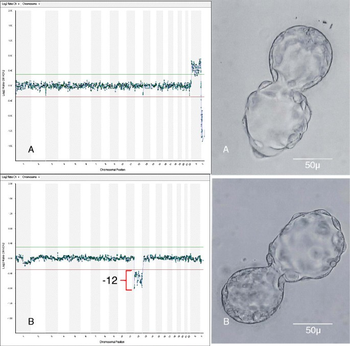 Selection of single blastocysts for fresh transfer via