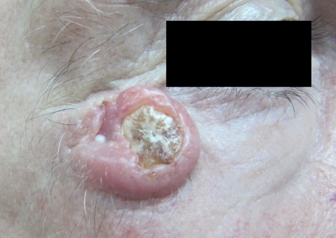 Recurrent facial keratoacanthoma in a patient with diabetes