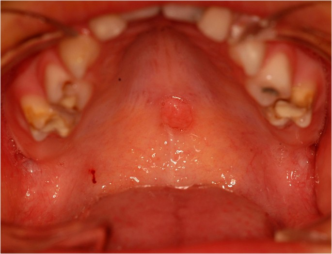 Condyloma acuminata in the tongue and palate of a sexually abused