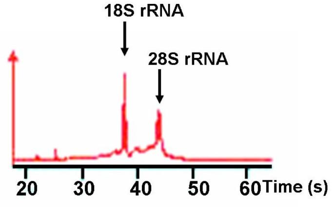 Gemcitabine sensitivity-related mRNA expression in