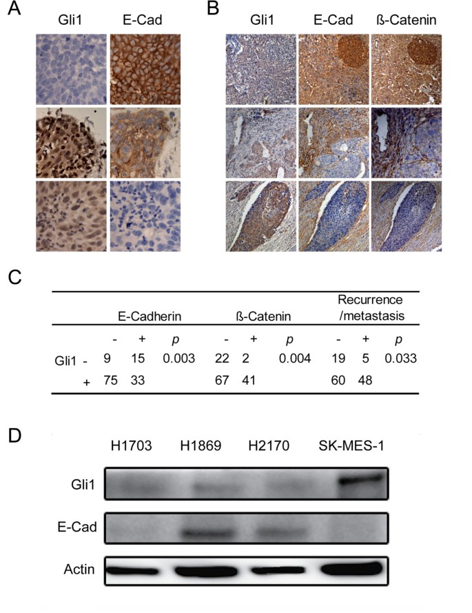 Hedgehog/Gli promotes epithelial-mesenchymal transition in