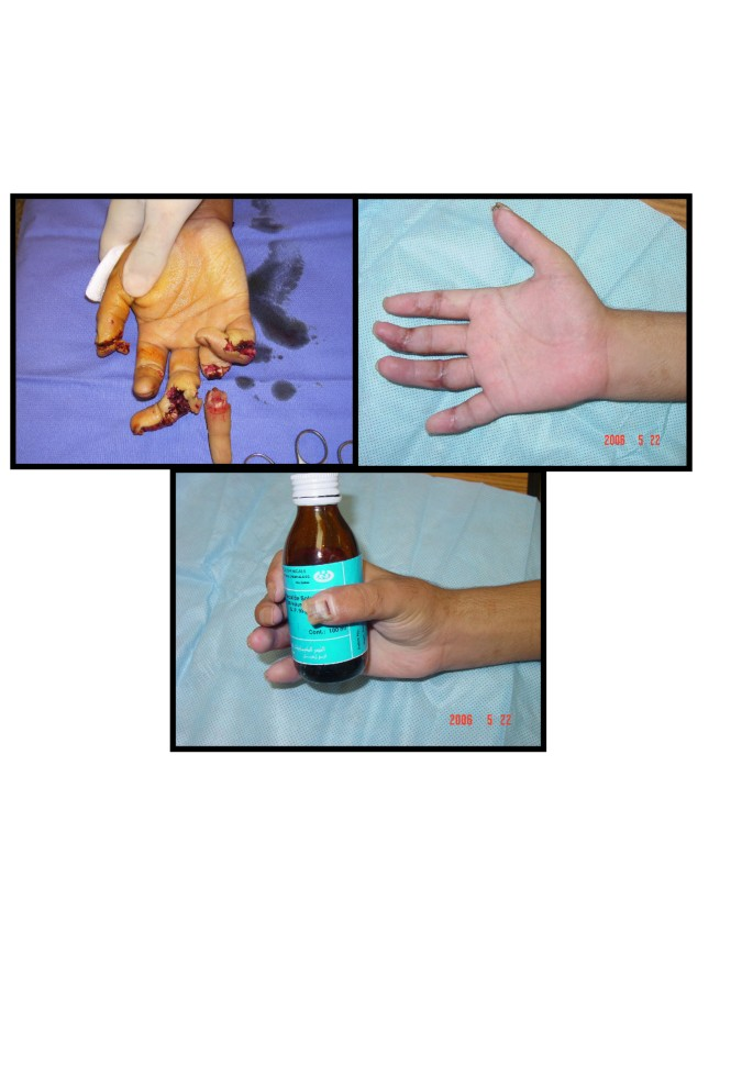 Replantation of multiple digits and hand amputations: four case