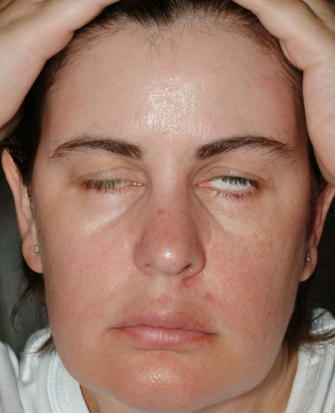 Guillain-Barré Syndrome presenting with bilateral facial