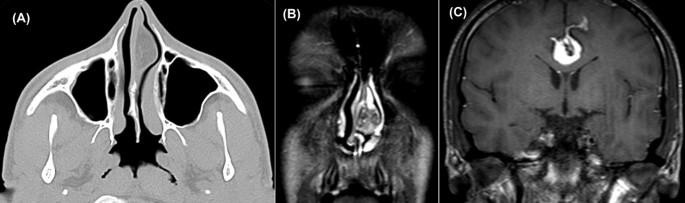 Fibrolipoma of the nasal septum