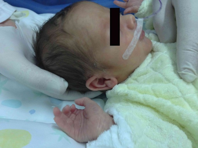 Introducing an osteopathic approach into neonatology ward: the NE ...