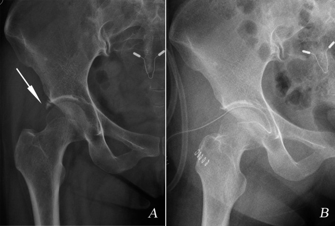 Arthroscopic treatment of chronically painful calcific