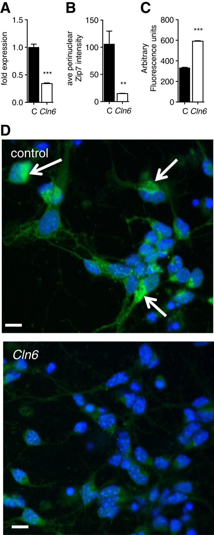 Deregulation of subcellular biometal homeostasis through