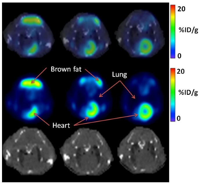Automated computer quantification of breast cancer in small-animal
