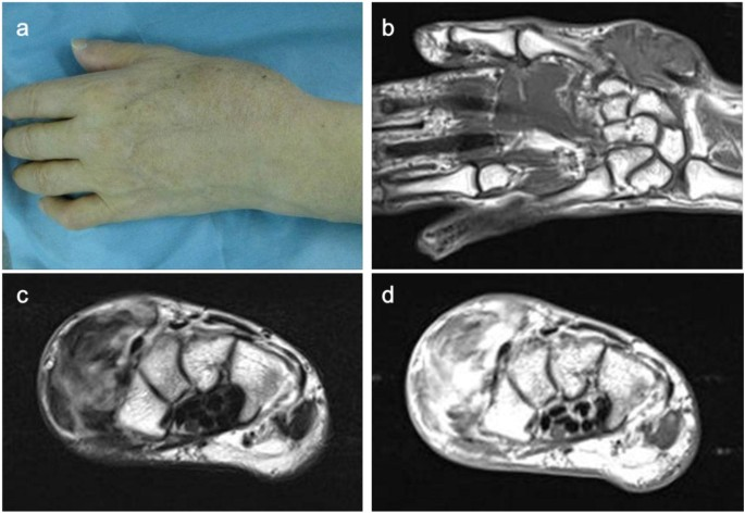 Clinical outcomes for patients with synovial sarcoma of the hand |  SpringerPlus | Full Text