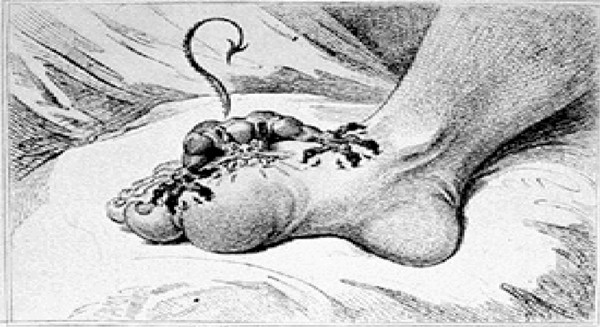 A concise history of gout and hyperuricemia and their