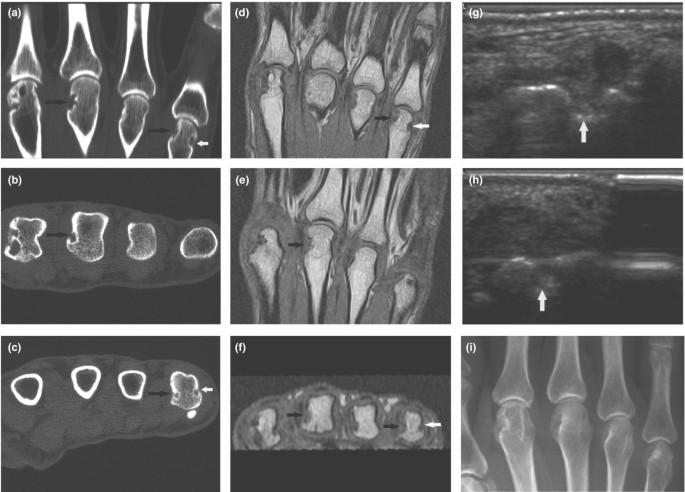 Are bone erosions detected by magnetic resonance imaging and