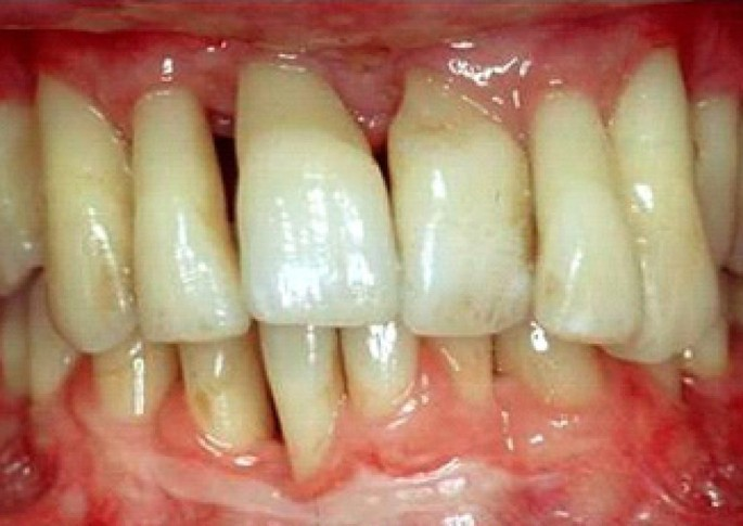 The association between rheumatoid arthritis and periodontal disease