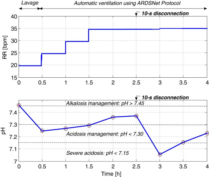 Automatic protective ventilation using the ARDSNet protocol with ...