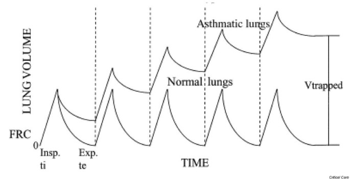 Clinical review: Mechanical ventilation in severe asthma
