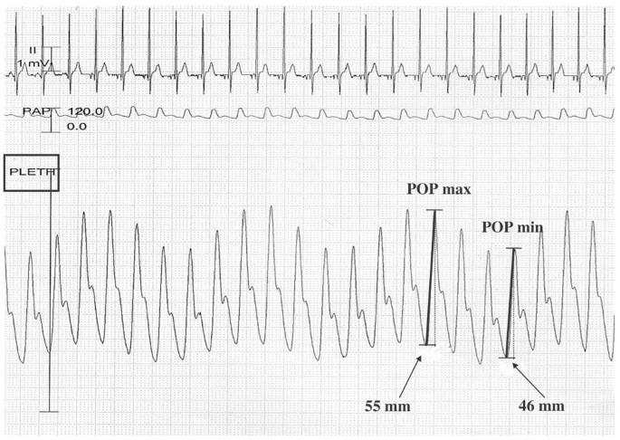 Relation between respiratory variations in pulse oximetry