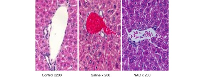 Prolonged treatment with N-acetylcystine delays liver