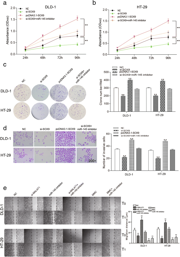 The effects of lncRNA MALAT1 on proliferation, invasion and