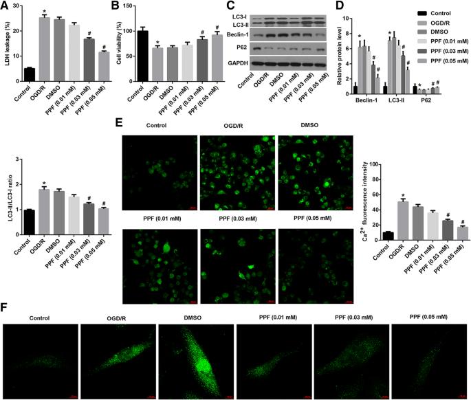 Propofol inhibited autophagy through Ca 2+ /CaMKKβ/AMPK/mTOR