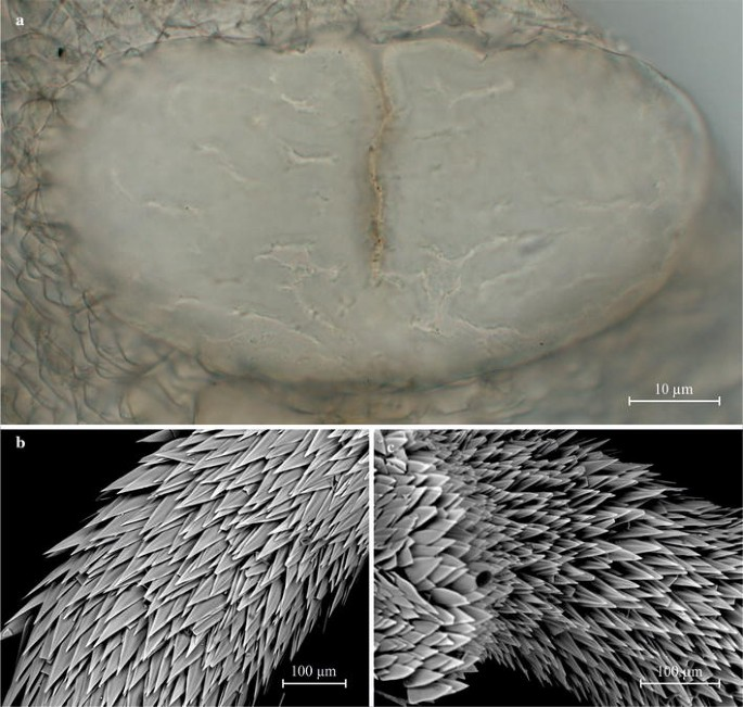 Four new species of Chaetodermatidae (Mollusca, Caudofoveata