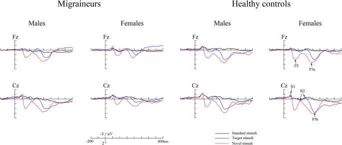 Female versus male migraine: an event-related potential