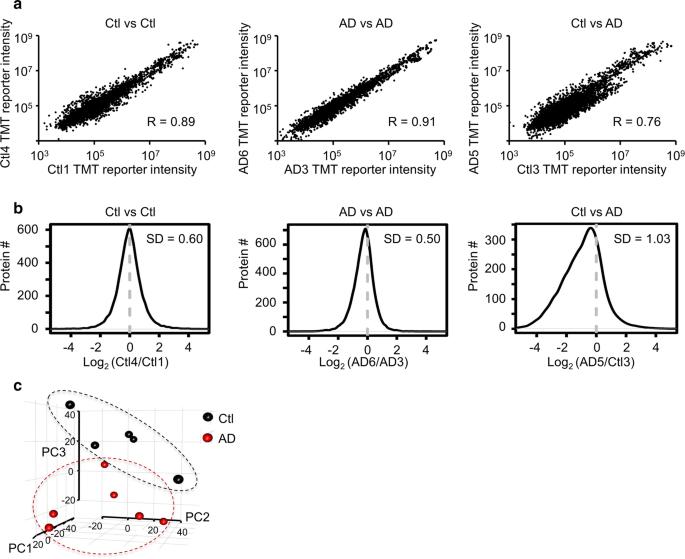 Deep undepleted human serum proteome profiling toward