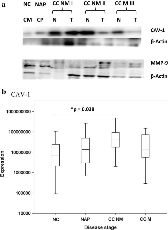 Proteomics Analysis Of Colon Cancer Progression Clinical Proteomics Full Text