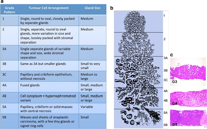 Hpv ferfiaknal szures - Caracteristicas que presenta el virus del papiloma humano