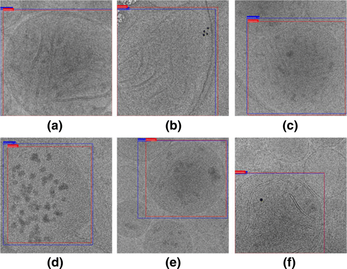 Automatic localization and identification of mitochondria in