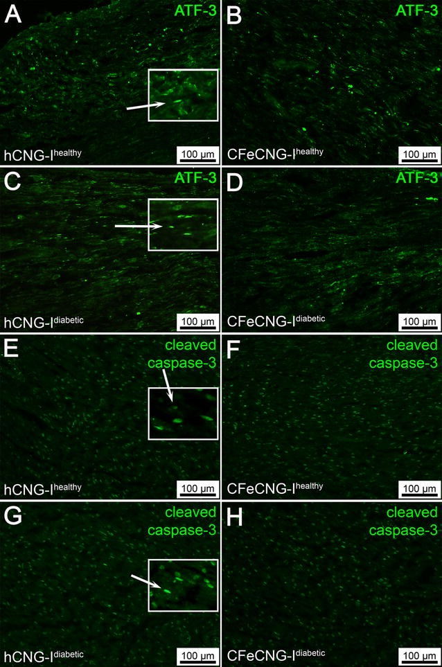 Regeneration of long-distance peripheral nerve defects after