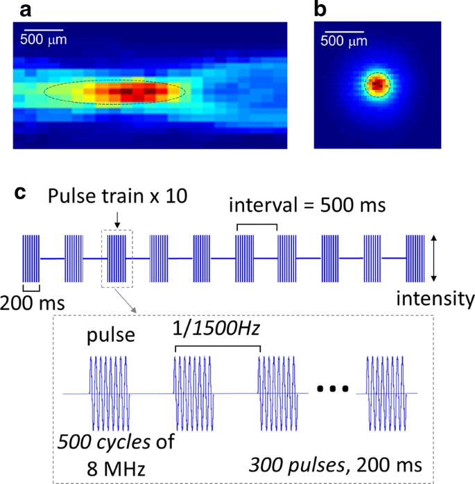Non-invasive measurement of hemodynamic change during 8 MHz