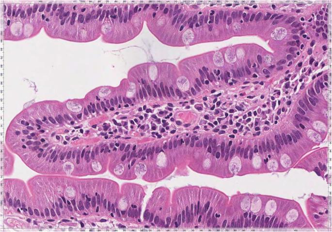 giardia duodenum histology)