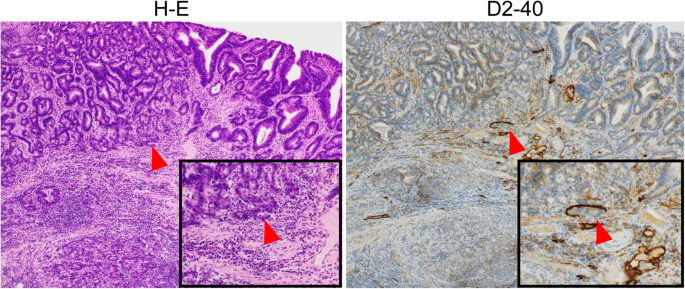 Use Of Immunostaining For The Diagnosis Of Lymphovascular Invasion In Superficial Barrett S Esophageal Adenocarcinoma Bmc Gastroenterology Full Text