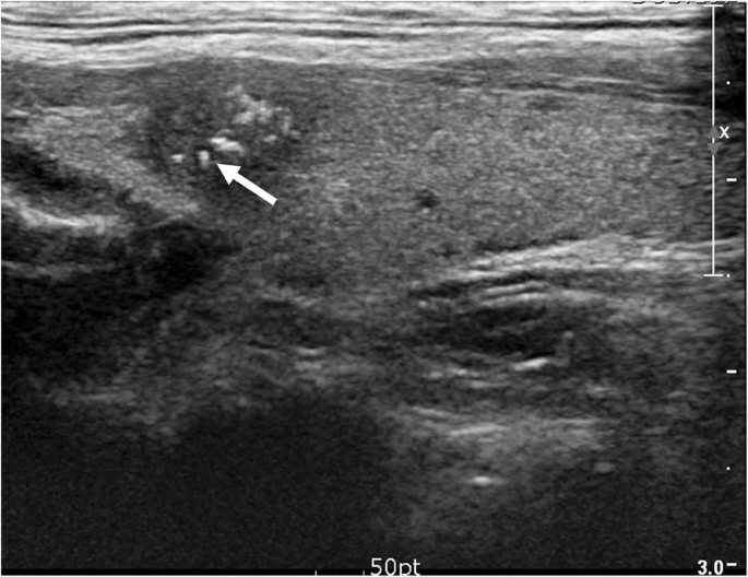 Echogenic Foci In Thyroid Nodules Diagnostic Performance With