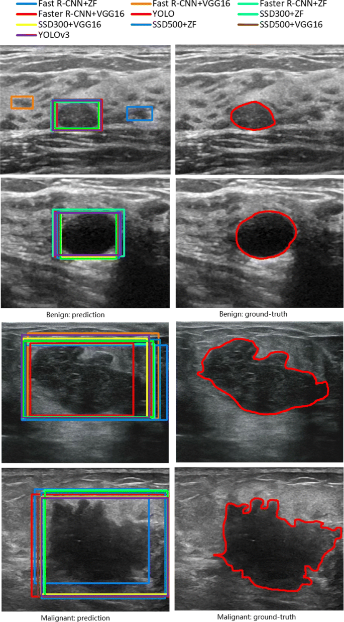An experimental study on breast lesion detection and