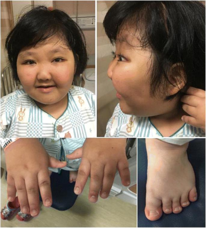 A de novo KMT2D mutation in a girl with Kabuki syndrome