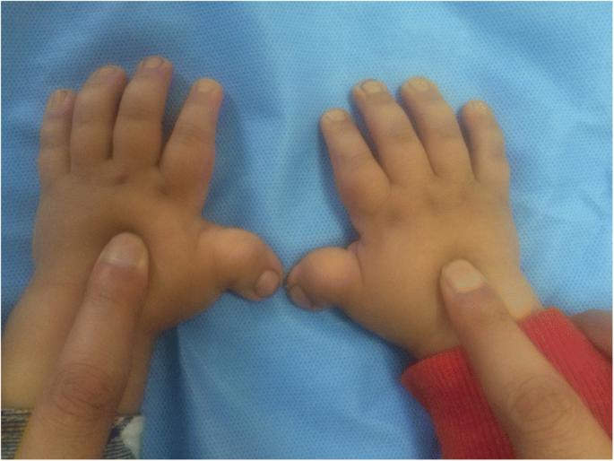 Rubinstein-Taybi syndrome in a Saudi boy with distinct