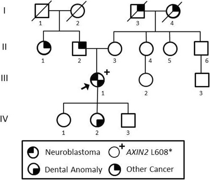 Case Report Expanding The Germline Axin2 Related Phenotype To Include Olfactory Neuroblastoma And Gastric Adenoma Bmc Medical Genetics Full Text