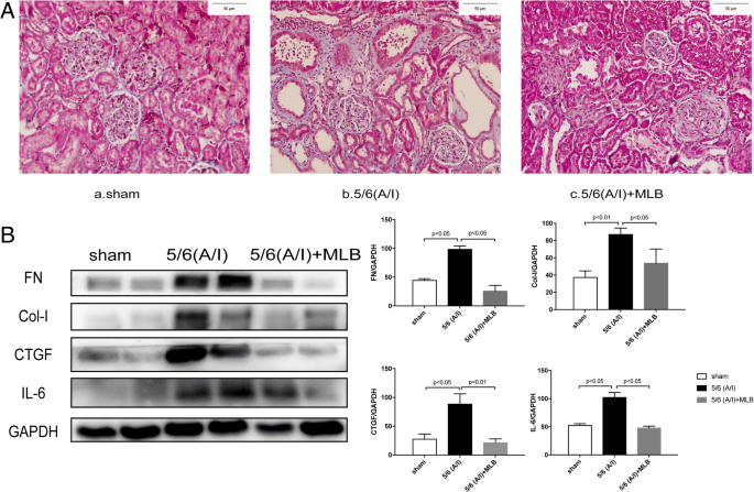 Magnesium lithospermate B improves renal hemodynamics and