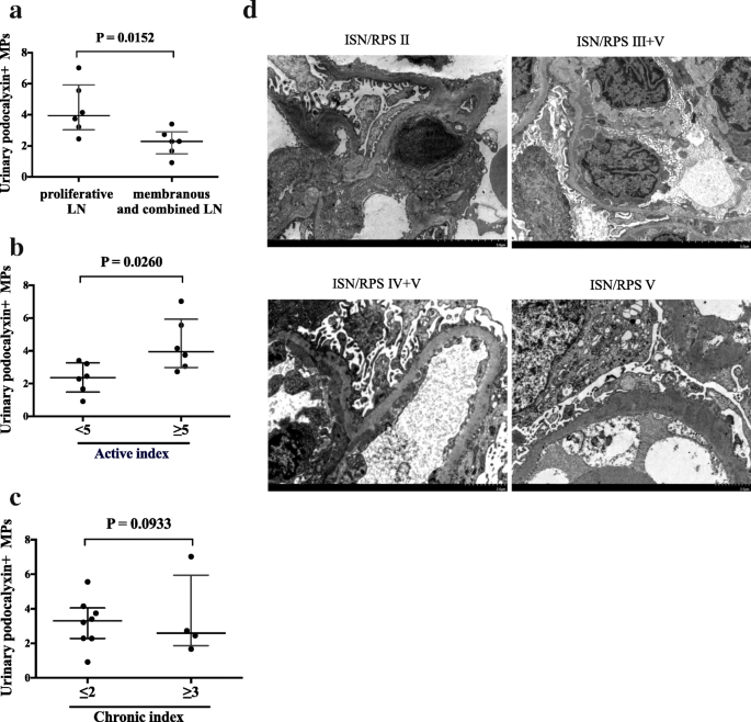 Urinary podocyte microparticles are associated with disease activity