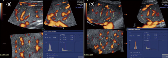 Three-dimensional power Doppler ultrasound evaluation of placental