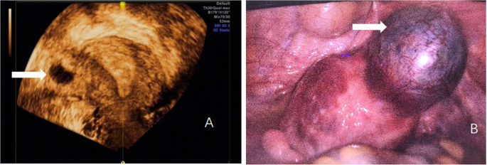 Ultrasound is what at weeks kind done of 7 Ultrasound Possible